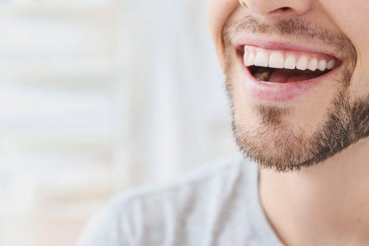دندان های سفید