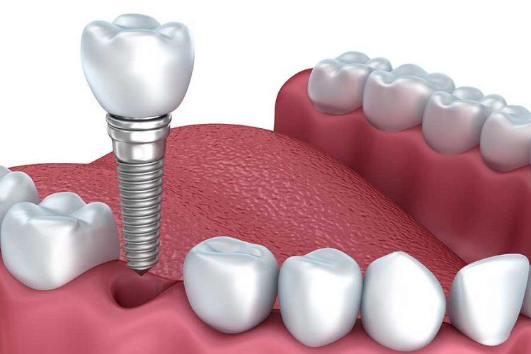ایمپلنت دندان و تاثیر آن در زیبایی