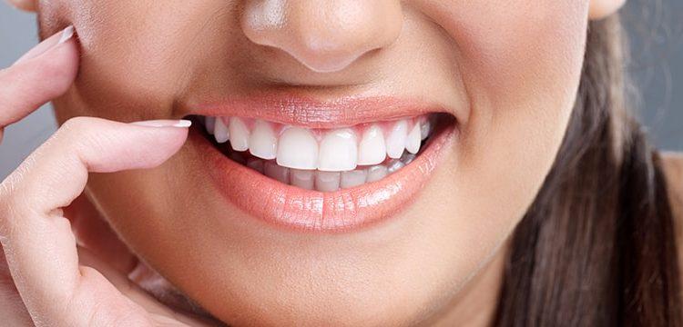زیبایی دندان با روکش زیرکونیم
