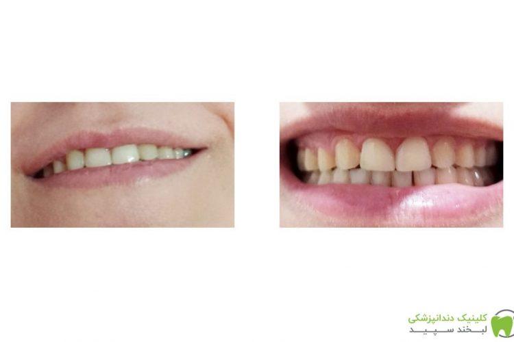 خانم محسنی قبل و بعد از ترمیم دندان 1 بالا سمت چپ