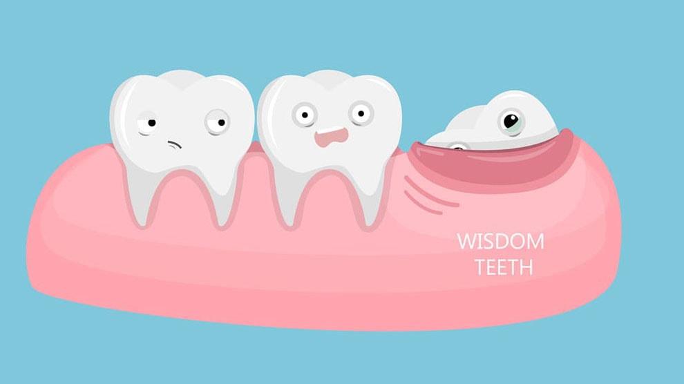 دلیل داشتن دندان های عقل چیست؟