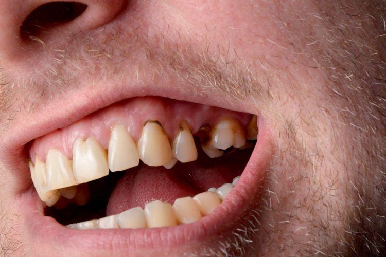 آیا از دست دادن مینای دندان مشکلی جدی است؟