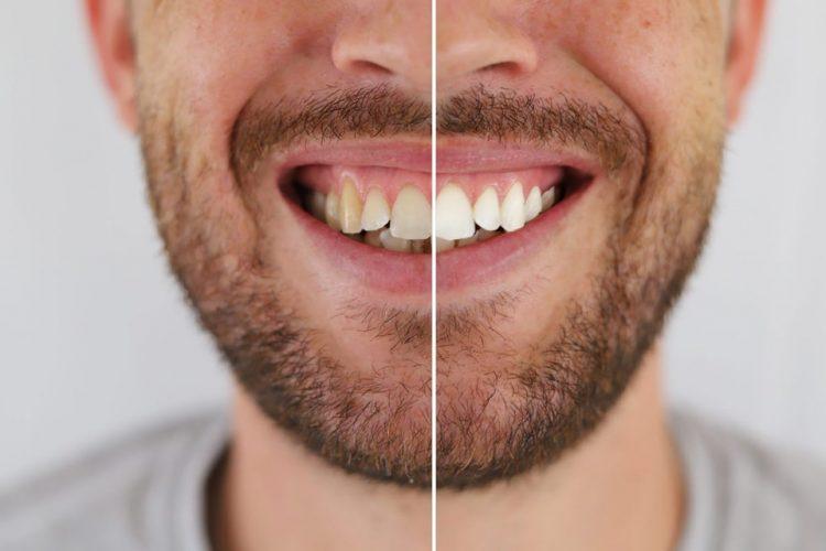 معرفی راه های سفید کردن دندان ها