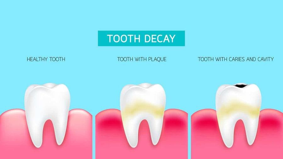 اطلاع از وجود حفره در دندان ها چگونه است؟