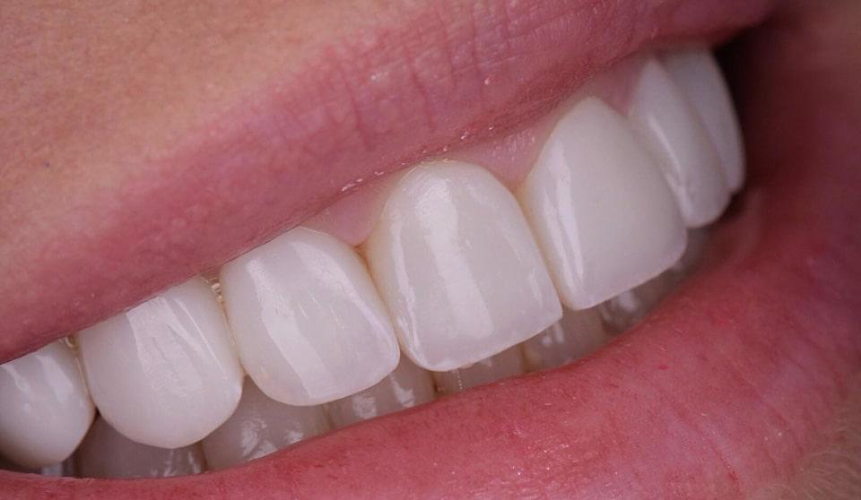 انجام کامپوزیت دندان