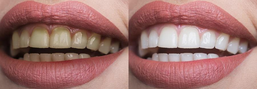 بلیچینگ دندان چیست؟