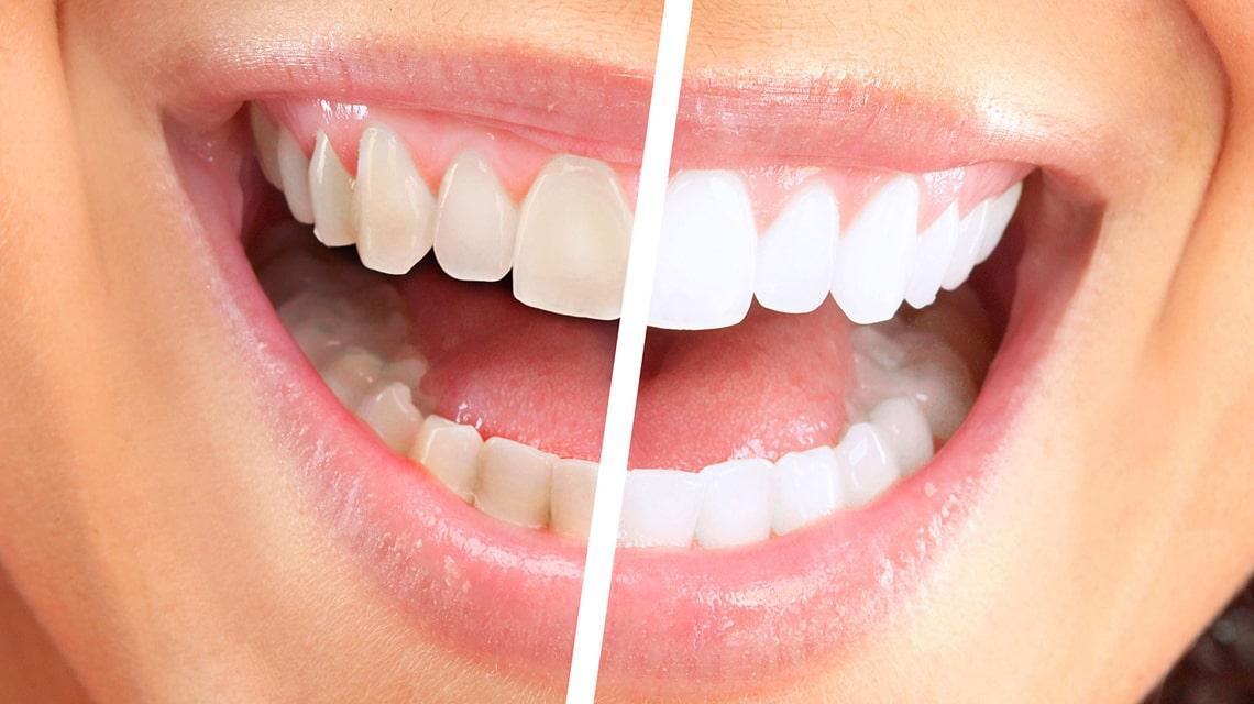 روش هایی برای سفید نگه داشتن دندان ها