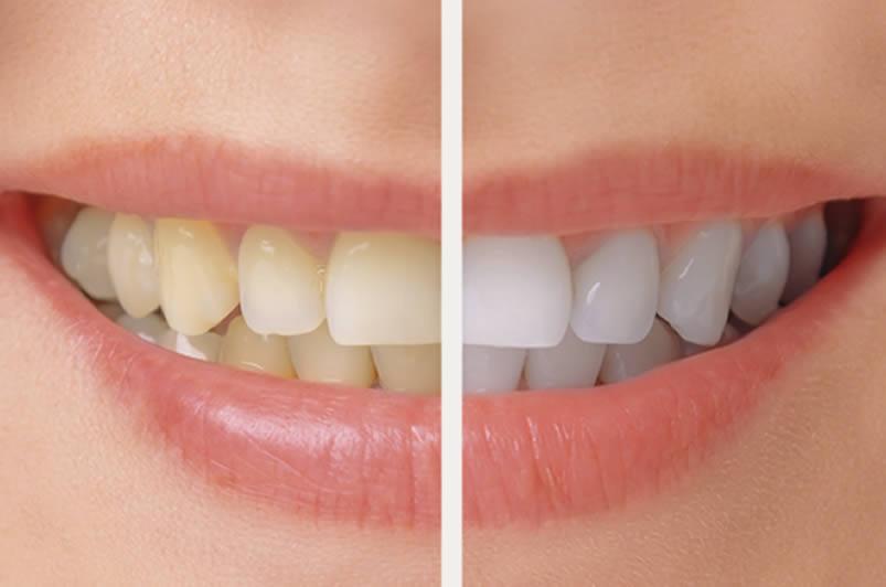 تاثیر خمیردندان سفید کننده چقدر است؟
