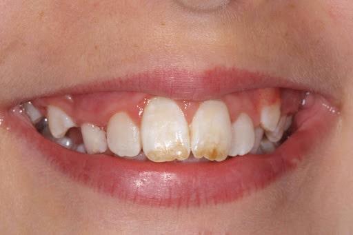 چگونه می توان به سرعت لکه های دندان را از بین برد؟