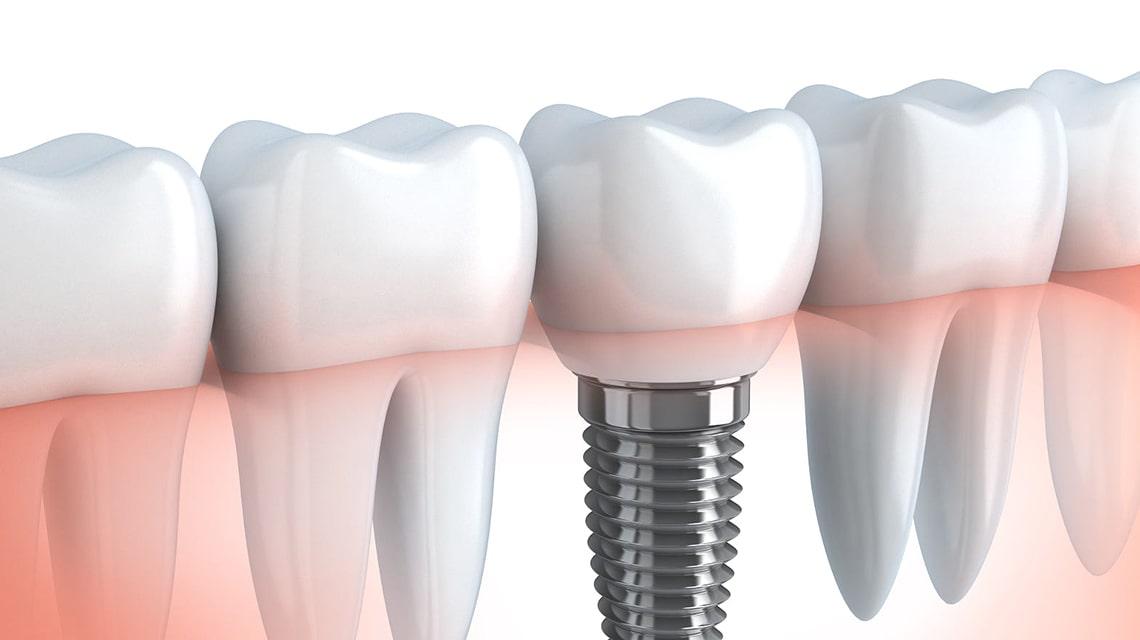 آیا ایمپلنت دندان دائمی است؟