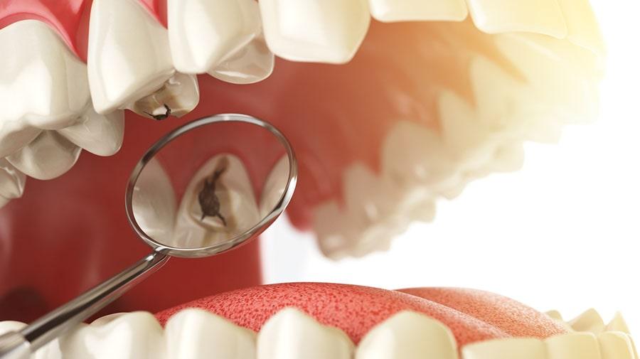 آیا شما در معرض خطر کرم خوردگی (پوسیدگی) دندان هستید؟