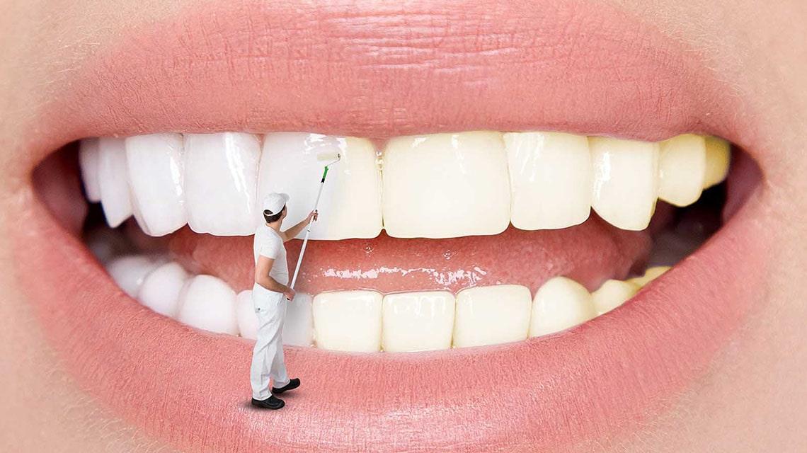 پاسخ به سوالات شما در مورد لکه دندان