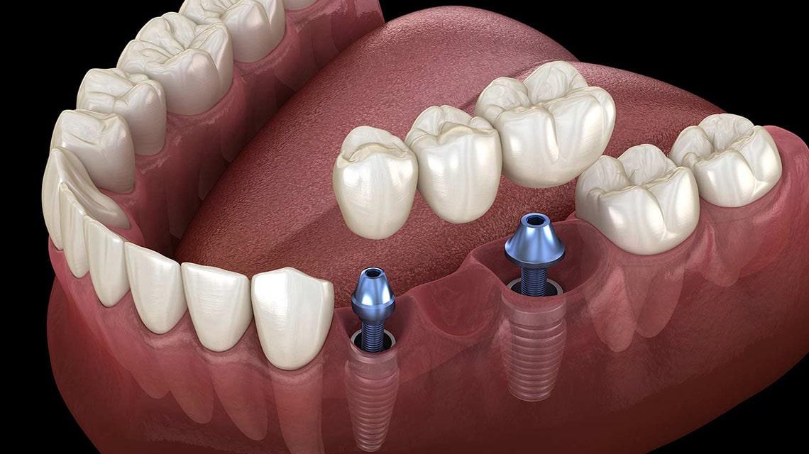 نقض پنج تفکر اشتباه در مورد ایمپلنت دندان
