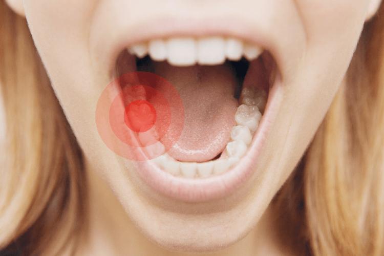 داروهای خانگی برای درمان 3 مشکل اصلی دهان و دندان