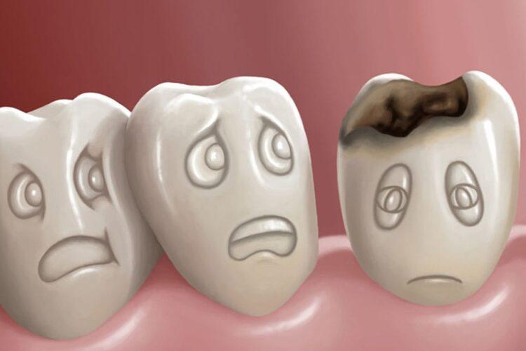 کرم خوردگی دندان؟ چه کاری باید انجام دهم؟