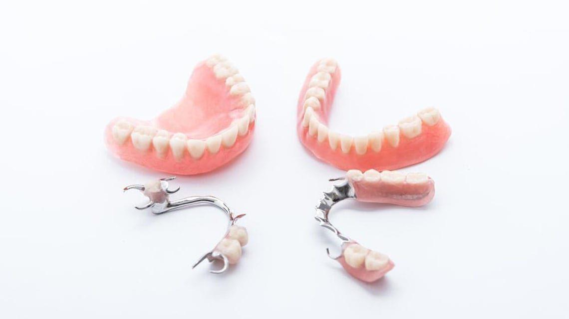 انواع مختلف پروتز دندان