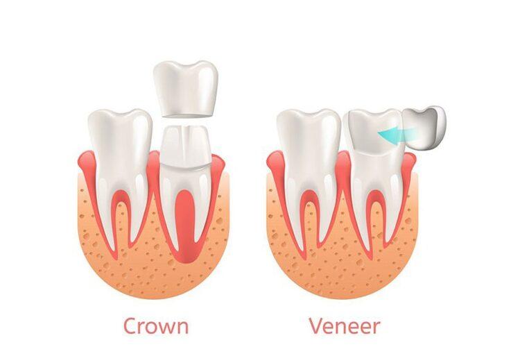 تاج کامل دندان یا روکش دندان ؟