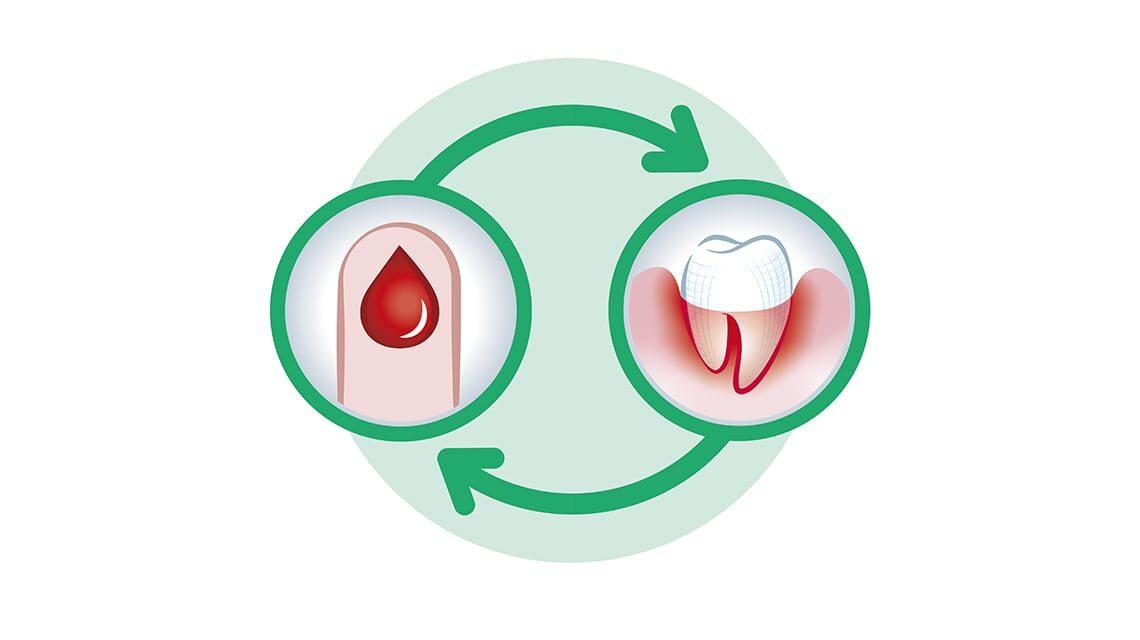 ارتباط میان دیابت و سلامت دهان و دندان