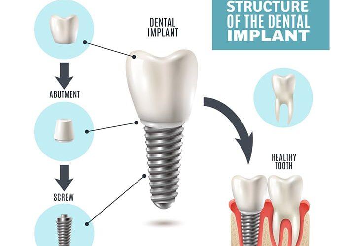 ایمپلنت دندان در سپیدنت